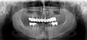 radiografie initiala